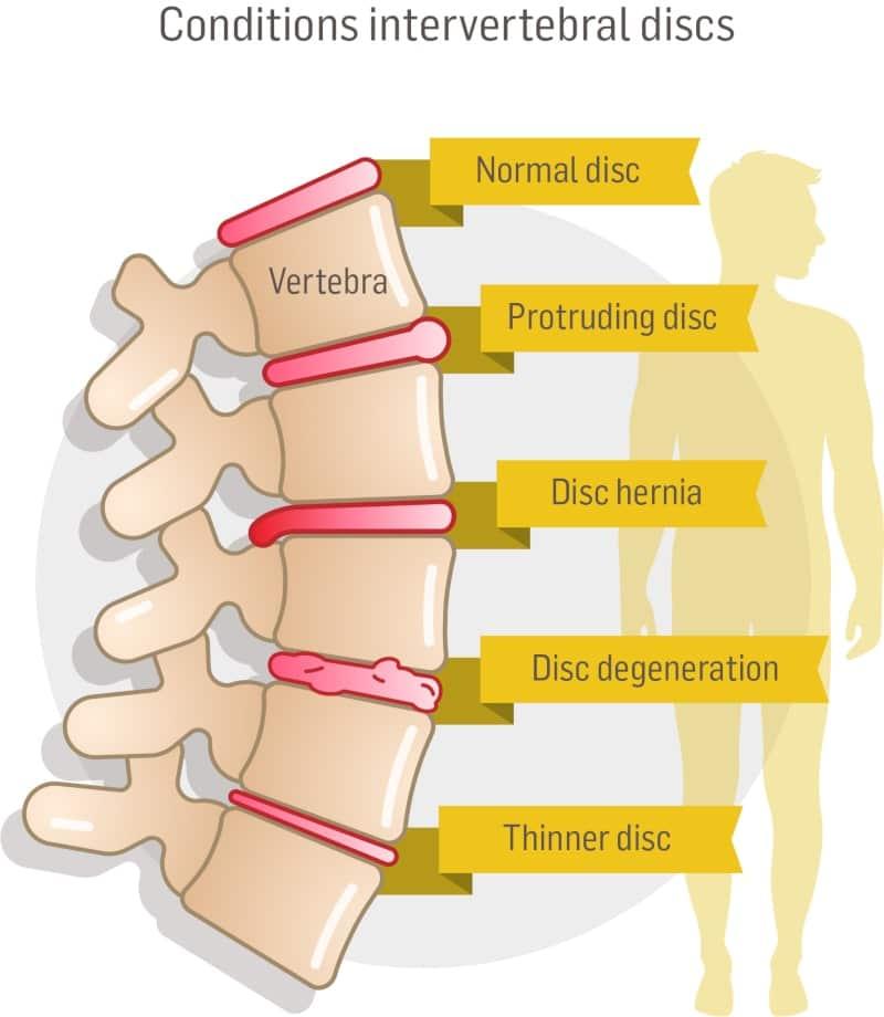 conditions intervertebral discs