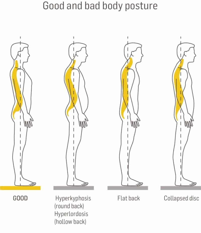 good and bad body posture