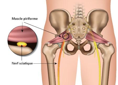 syndrome du piriforme muscle piriforme nerf sciatique