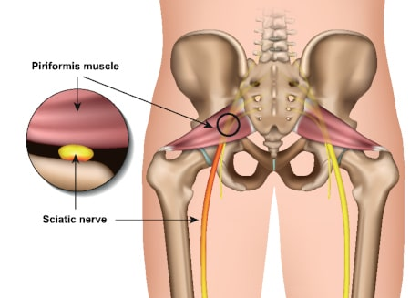 Piriformis syndrome piriformis muscle sciatic nerve